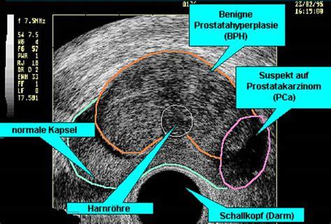 blasenkrebs ultraschall