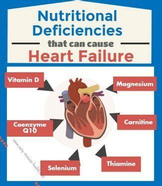 health and wellness don 39 t forget about causes of congestive failure that