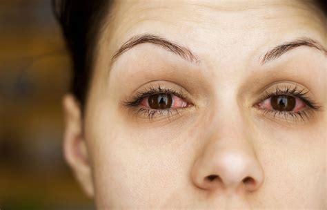 common   red  bloodshot eyes