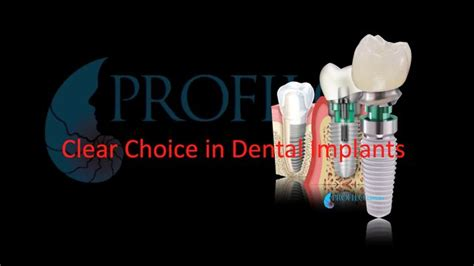 Clear Choice In Dental Implant Treatment On Vimeo. Bankruptcy Lawyers In Virginia Beach. Remote Access Security Online Teacher Classes. Can You Get A Passport If You Owe Taxes. Institute Of Cancer Research. Emerson College Tuition Cheap Dedicate Server. Fedex Stock Price Today What Is Procrastinate. Supplemental Medicare Insurance. Mortgage Rates In Nj Today No Judgement Zone