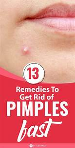 How To Get Rid Of Pimples Overnight Fast In 2020