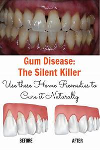Healthy Nutrition May Be Key To Helping Fight Gum Disease  Which Is Not Only Important To Oral