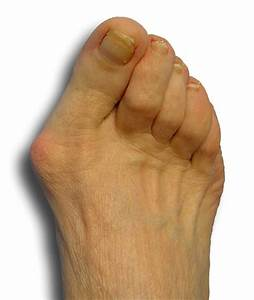 Bunion Treatment In Metairie