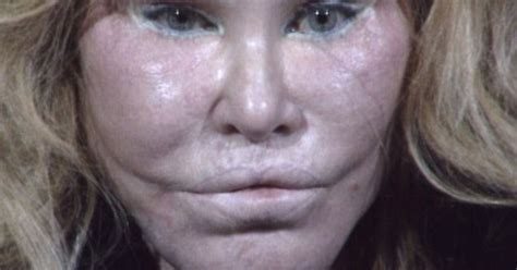 'Catwoman' Jocelyn Wildenstein's changing face and life ...