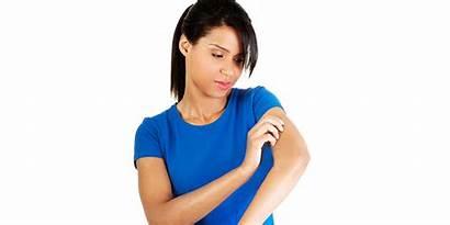 Vaccine Scar Bcg Scars Smallpox Pox Marks