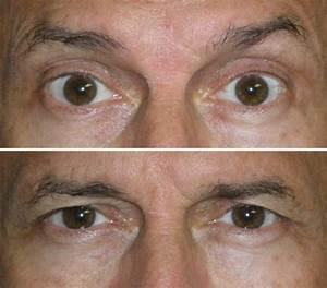 droopy eyelids and Botox « Dr. Niamtu's Weblog