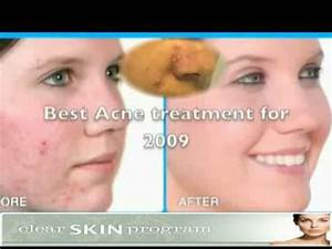 natural treatment for acne and pimples
