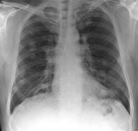 lung ray cancer imaging cane du medical ltd photograph disease 11th uploaded which