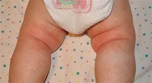 Heat rash or eczema? - BabyCenter