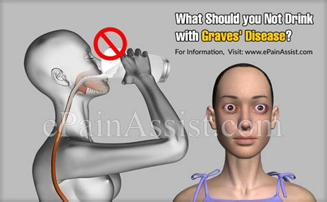 Additional causes for coffee sensitivity. What Should you Not Drink with Graves' Disease?