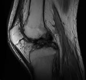 Hemophilia Knee MRI