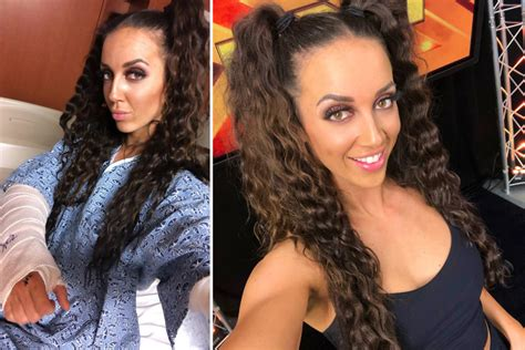 Her first win came against kaitlin diamond. WWE star Chelsea Green to undergo surgery after breaking ...