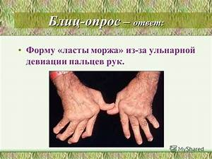 Как лечить артроз плечевого сустава народными средствами