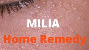 Milia treatment - YouTube