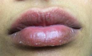 how to treat eczema on lips | Decorativestyle.org