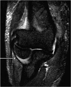 Elbow MRI | Radiology Key