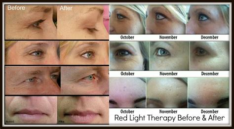 led light therapy before and after light therapy where science meets magic
