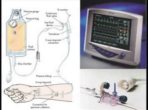 Disposable Pressure Transducer Kits Manufacturers and