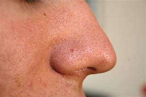 Home Remedies For Acne Pimples And Blackheads Get Clear