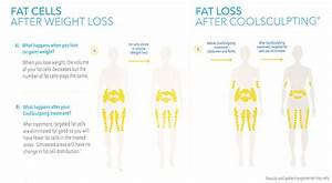 Coolsculpting  Fat Reduction Vs Weight Loss