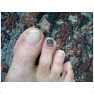 Bruised Nail Bed by Will I Lose My Bruised Toenail Foot Care In Michigan