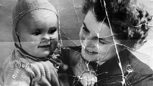 Badly Damaged Baby Photo Saved