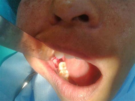 ladivya superspeciality dental clinic distoangular