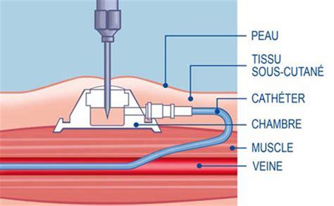 chambre implantable pour perfusion chimiothérapie une chambre implantable va m 39 être posée