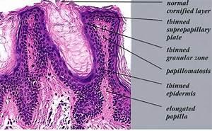 Acanthosis nigricans =داء الشواك الأسود