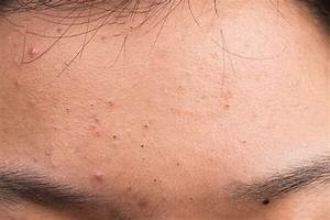 Why do small bumps on forehead won't go away? Causes and ...