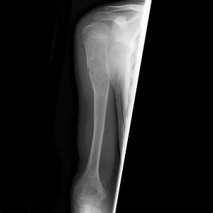 Unicameral bone cyst with fracture and fallen fragment ...