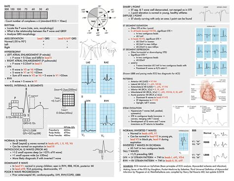 ecg cheat sheet ecg rapid view it is organized roughly