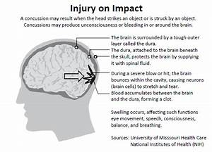 Sports Concussion Facts And Symptoms