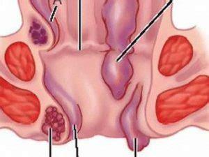ragadi interne all ano salute mettiamo a nudo le emorroidi malattia imbarazzante