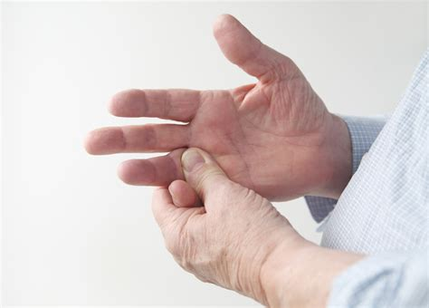 In Scleroderma Associated Raynauds Botulinum Toxin Not
