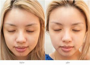 Pics For > Milia Removal Before And After