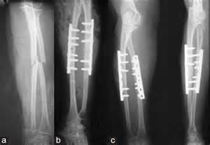 Both Bone Forearm Fracture
