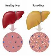 Fatty Liver Cartoon