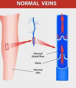 Varicose Veins  U2013 Vascular Institute Of Pasadena