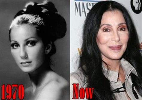 cher surgery plastic before then augmentation nose job breast celebrity breasts facelift did rib removal funny