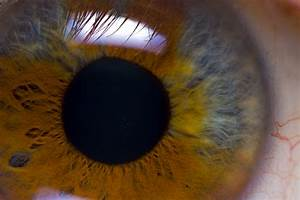 heterochromia iridis 2 by gwegowee on DeviantArt