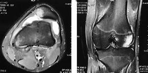 Lateral Distal Femoral Bone Bruise  Complete Rupture Of