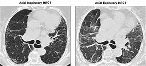 Cystic Lung Disease Ct