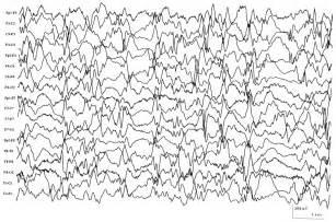 Infantile Spasm EEG Pattern