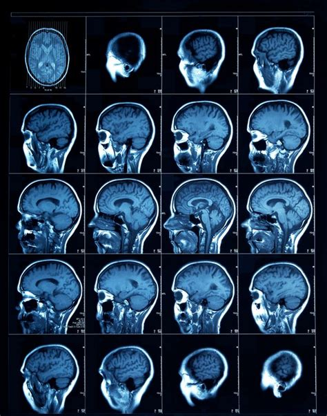 depression damage term long causing same could brain alzheimer