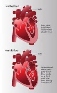CHF Congestive Heart Failure