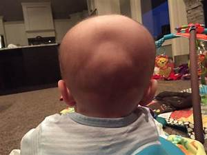 Flat Spot  Indent On Back Of Head