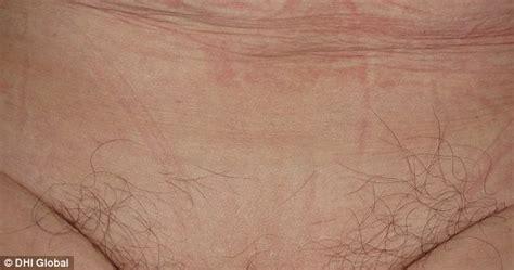 surge  womens hair transplants   bikini lines