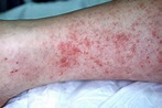 Rocky Mountain Spotted Fever - The Clinical Advisor