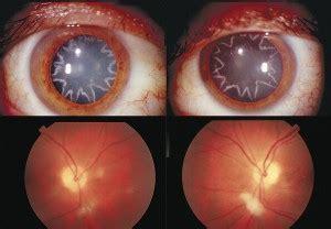 Interesting Report: Ocular Manifestation of Electrical ...